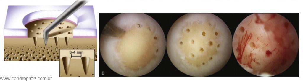 lesões osteocondrais, Condropatia e lesões osteocondrais, Ortopedista Especialista em Lesões da Cartilagem - DF